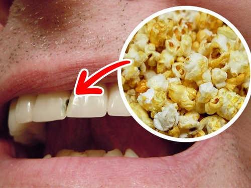 nguyên nhân gây sâu răng 1
